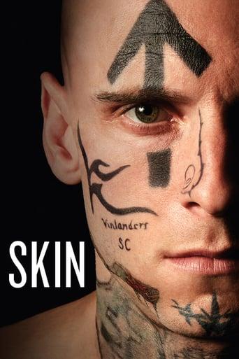 Watch Skin